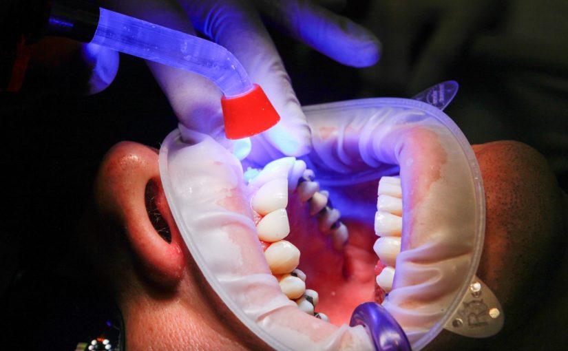 Zła sposób odżywiania się to większe niedostatki w zębach a dodatkowo ich utratę