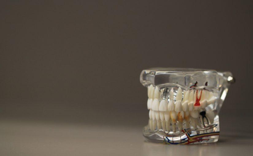 Złe podejście żywienia się to większe ubytki w jamie ustnej natomiast również ich utratę